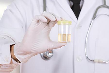 بیماری هایی که با ادرار قابل تشخیص هستند