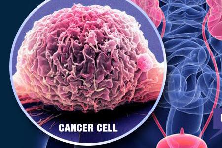 علائم سرطان مثانه و راههای درمان آن
