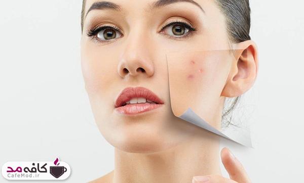 چگونه پوست چرب و جوش دار را پاکسازی کنیم