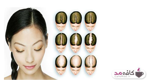 با تغذیه مناسب جلوی ریزش موی خود را بگیرید