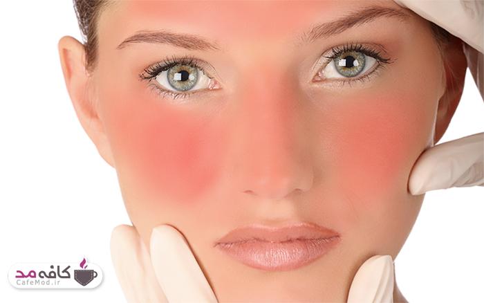چگونگی درمان آفتاب سوختگی
