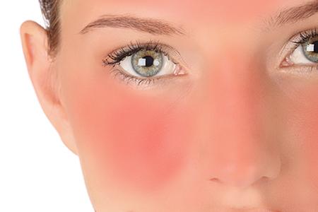 چگونگی درمان آفتاب سوختگی 2