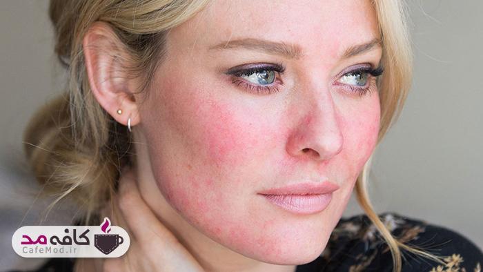 نکات مراقبت از پوست برای روزاسه