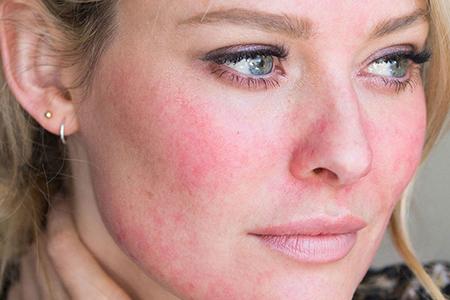 نکات مراقبت از پوست برای روزاسه 2