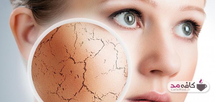 روش های خانگی برای از بین بردن ترک های پوستی