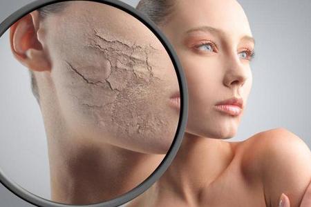 روش های خانگی برای از بین بردن ترک های پوستی 2