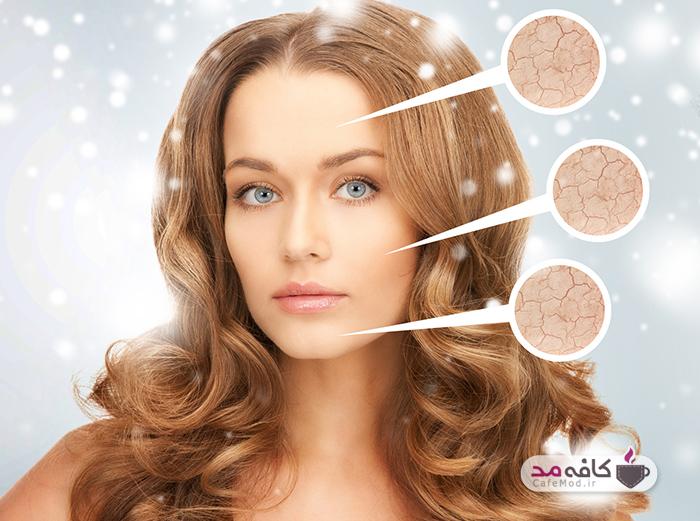 توصیه های زمستانی برای مراقبت از پوست