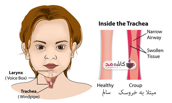علل و درمان خروسک در کودکان