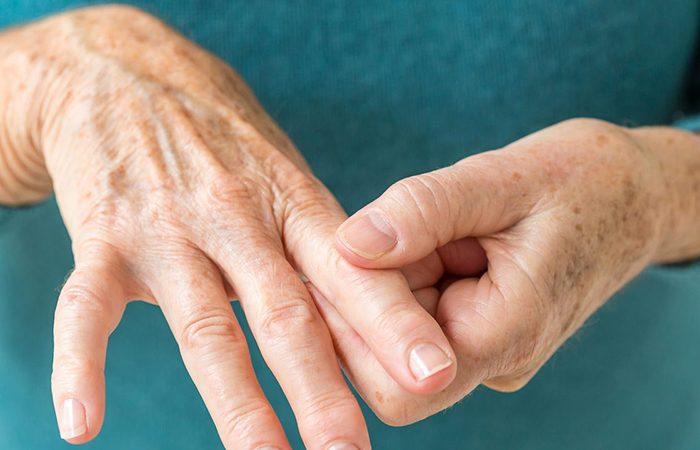 بیماری های مفصلی رایج در بانوان ایرانی
