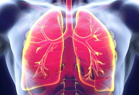 درمان فیبروز ریه با ارزان ترین داروی درمان دیابت