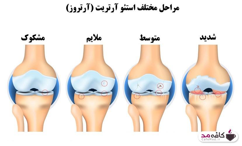 التهاب مفصلی استئوآرتریت