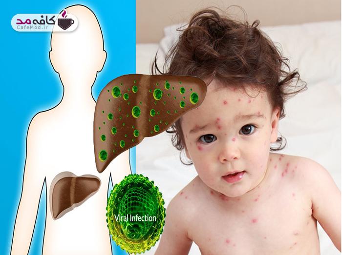 سندرم ری در کودکان