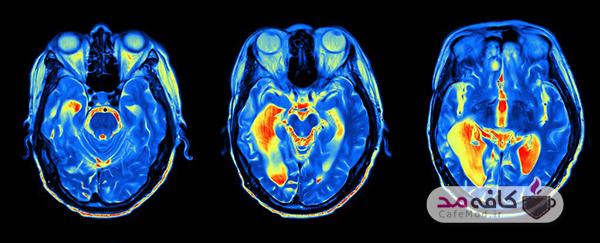 احساس جوان تر بودن نشانه سلامت مغز است