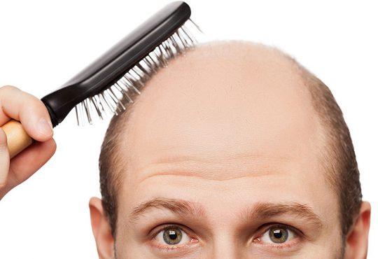درمان ریزش مو با از کار انداختن یک ژن در بدن
