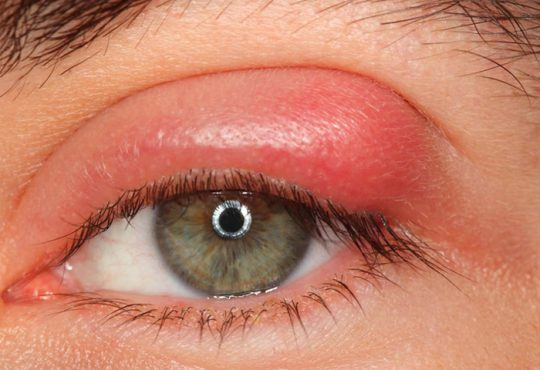 علائم و مراحل درمان شالازیون چشم