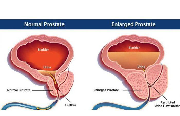 رژیم غذایی برای کوچک شدن پروستات