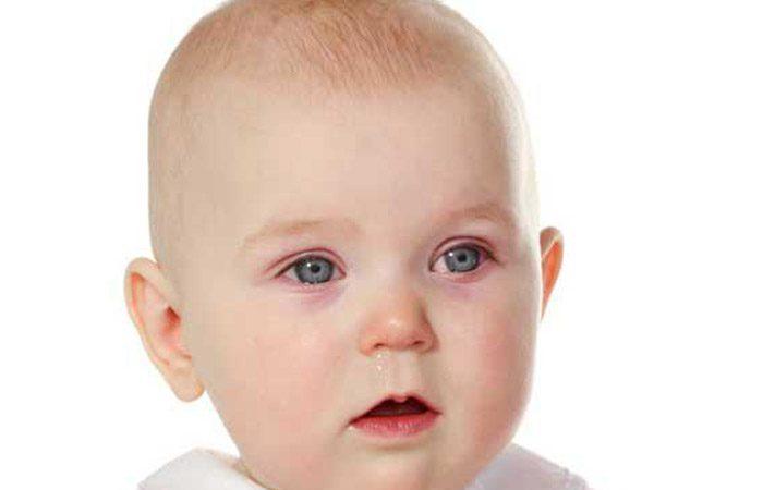 علت و درمان عفونت چشم در کودکان