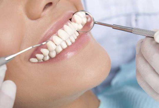 همه چیز درباره لمینت دندان