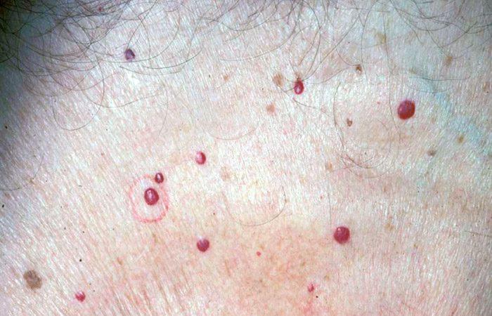 شرایط نگران کننده پوستی پس از 40 سالگی