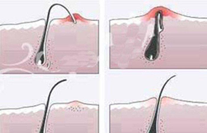 موهای زیر پوستی چرا به وجود میآیند؟