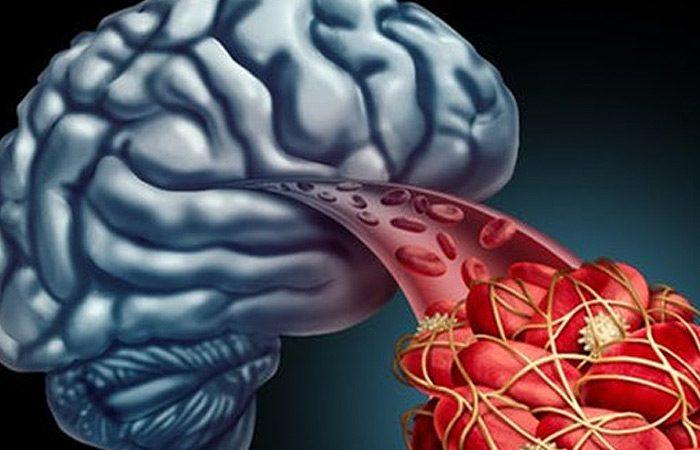 کشف انسداد عروق خونی مغز، راهی را برای درمان آلزایمر