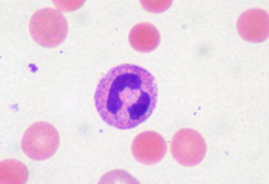 کم خونی همولیتیک خود ایمن چیست