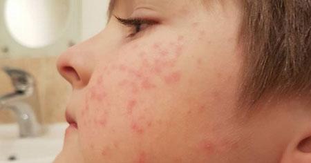 فولیکولیت (التهاب یا عفونت فولیکول مو)؛ درمان و پیشگیری از آن