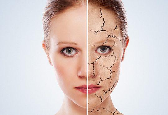 درمان طبیعی برای خشکی پوست