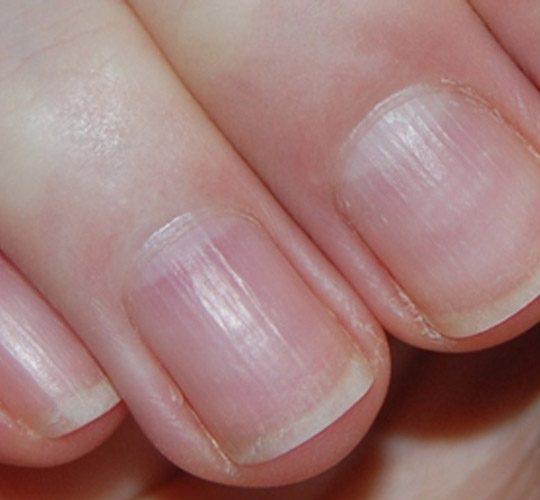 علت خطوط روی ناخن و راههای درمان آن