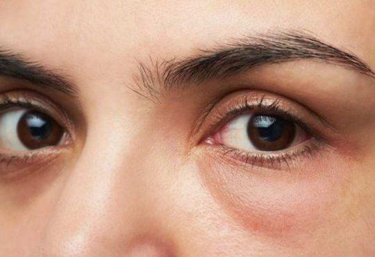 چند راهکار ساده برای رفع پف زیر چشمها