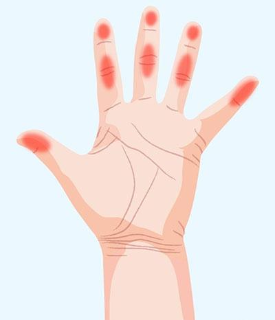 رابطه دست با سلامت بدن