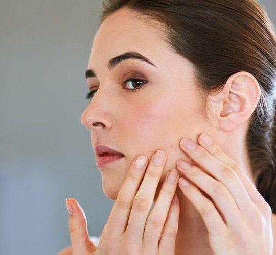 با مواد طبیعی جوشهای صورتتان را درمان کنید!
