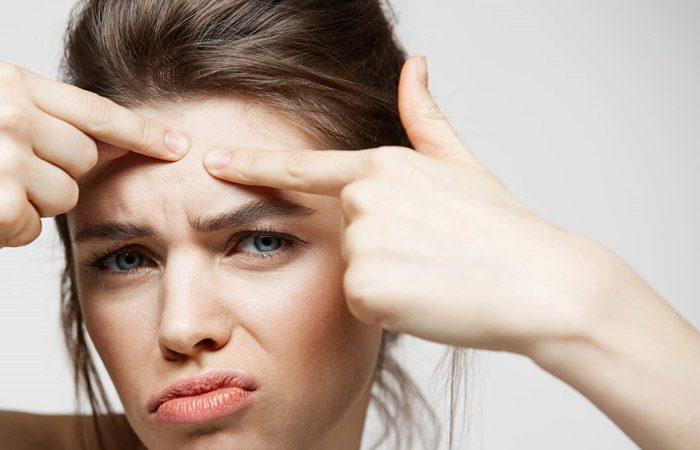 با این 7 راه از جوش زدن صورتتان جلوگیری کنید.