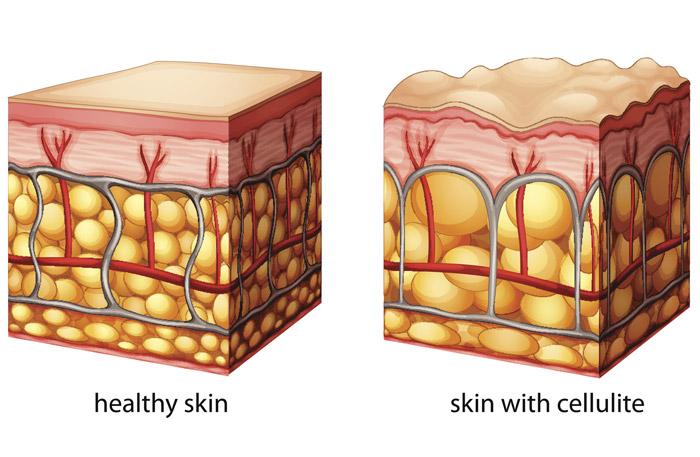 رفع سلولیت با کرم و روغن