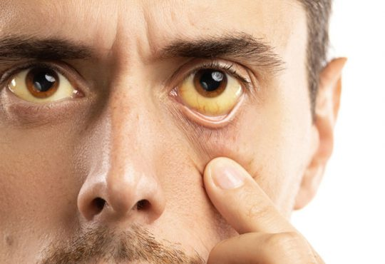 زردی چشم کی خطرناک می شود؟